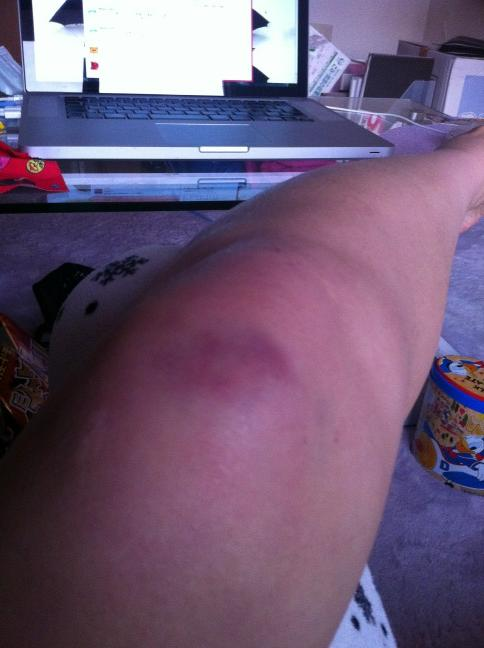 Huge bruises appearing on legs