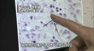 NHK reported the risk of internal exposure in June 2009