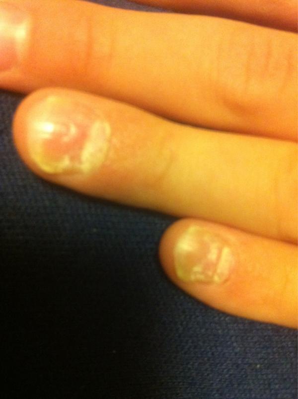 Yokohama people are also having problems in nail | Fukushima Diary