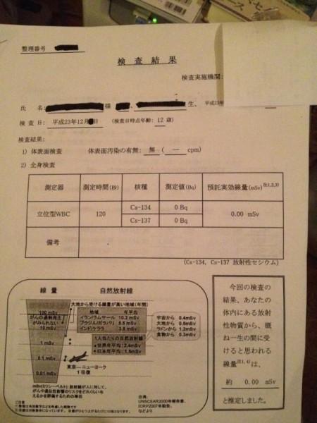 Detectable amount of WBC in Fukushima is 300 Bq/Kg