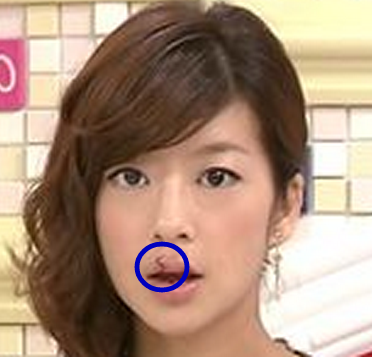 "Female TV announcer showed up on TV with massive blood blister on lip, ""oral herpes?"""