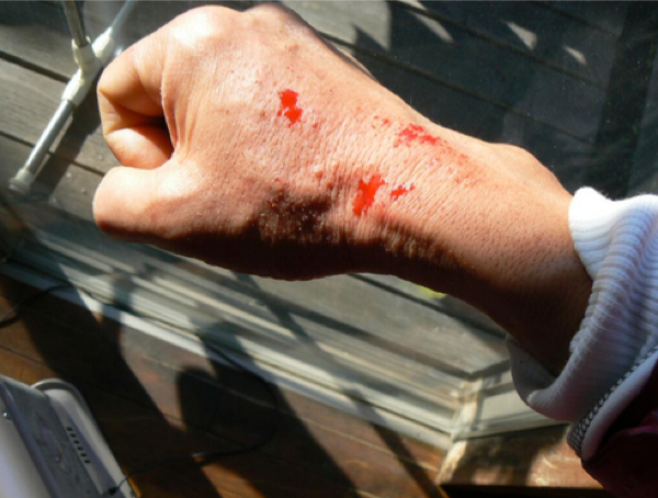 3 Photo Fukushima decontamination volunteer Blood suddenly splashes out of skin quite often. This is the reality.