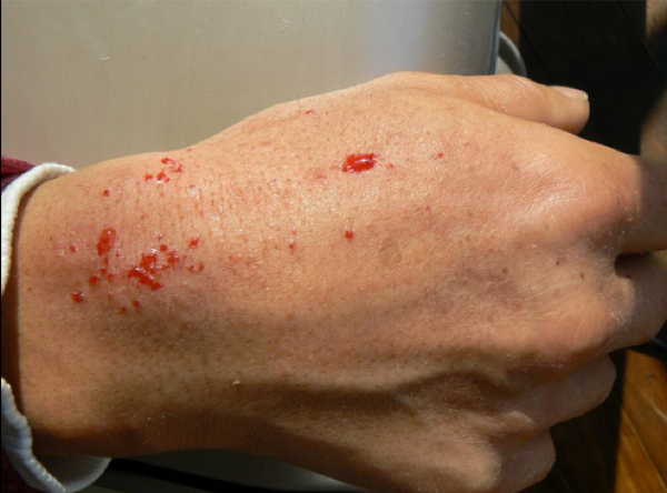 Photo Fukushima decontamination volunteer Blood suddenly splashes out of skin quite often. This is the reality.