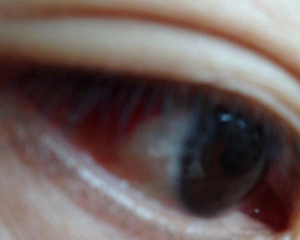 Japanese bleeding from eyes