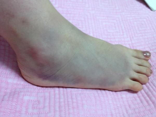 News reporter reported her own huge bruise