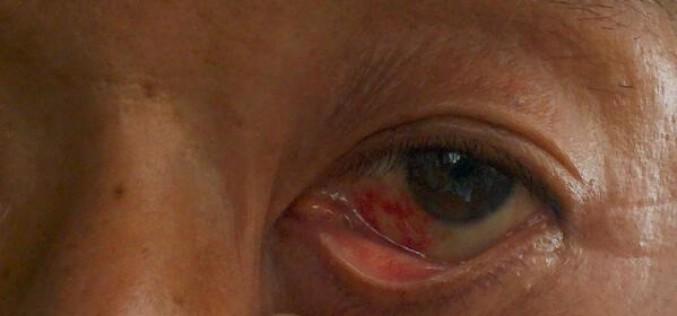 """Fukushima decontamination volunteer """"My left eye had bleeding when I woke up this morning"""" – Photo"""