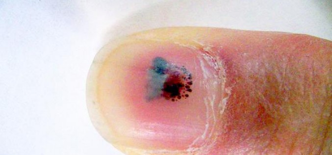 Radiation measurer has bleeding inside of his nail after measuring vacuum cleaner dirt – Photo