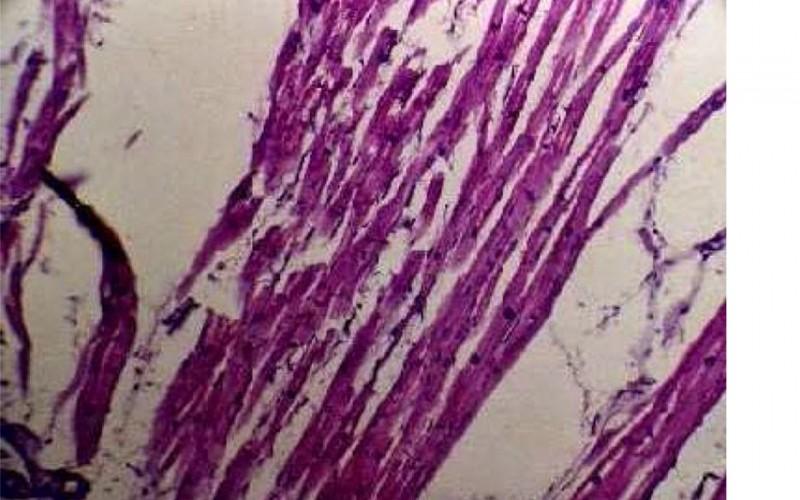 Tachyarrhythmia increased 8× as 2010 in a hospital of Sendai